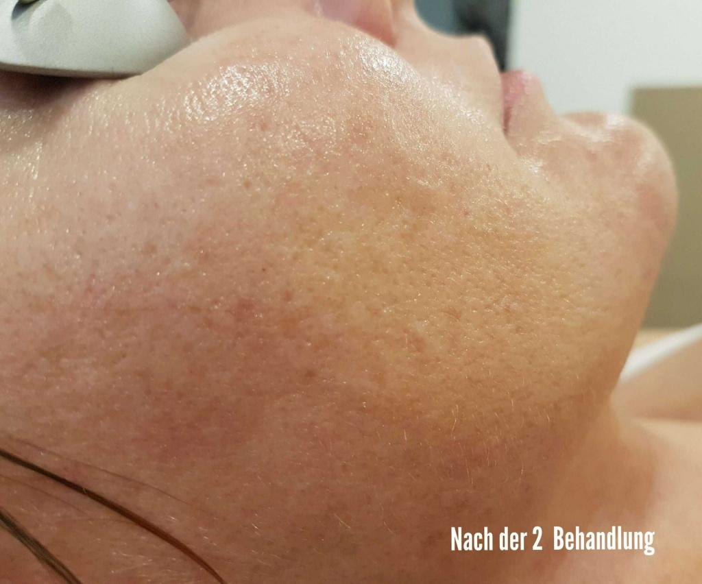 Verbesserung der Hauttextur salon in Wien