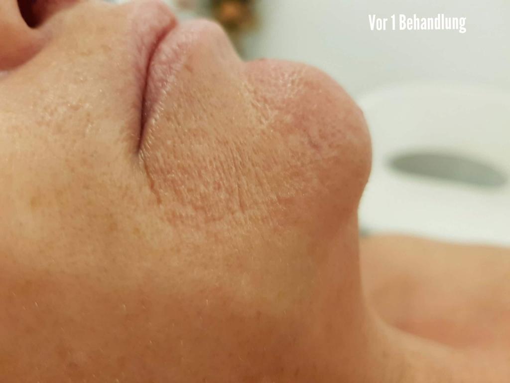 Ma Jolie Laser haarentfernung Hautverjüngerung